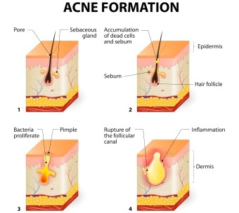 The Ins and Outs of Acne Scars
