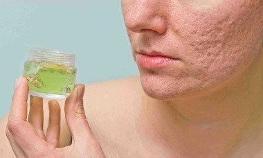 how to get rid of acne scars with vitamin k
