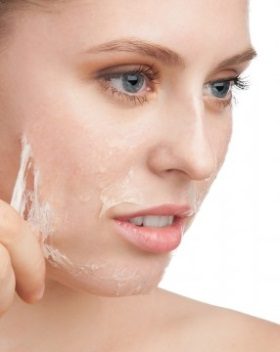 chemical peels for acne scars