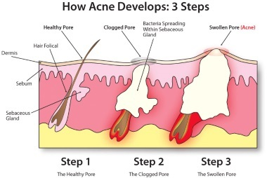 Acne – What Actually is it?