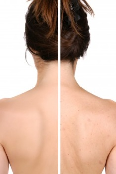 Back Acne Scars How To Get Rid Of It